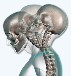 Neck Pain South Phoenix